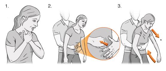 Maniobra de Heimlich para auxiliar a alguien que se ha atragantado