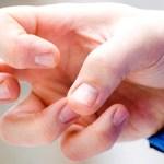 Causas de la epilepsia y ¿cómo se diagnostica?