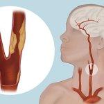 4 cosas que destruyen tus arterias y cómo mantenerte saludable