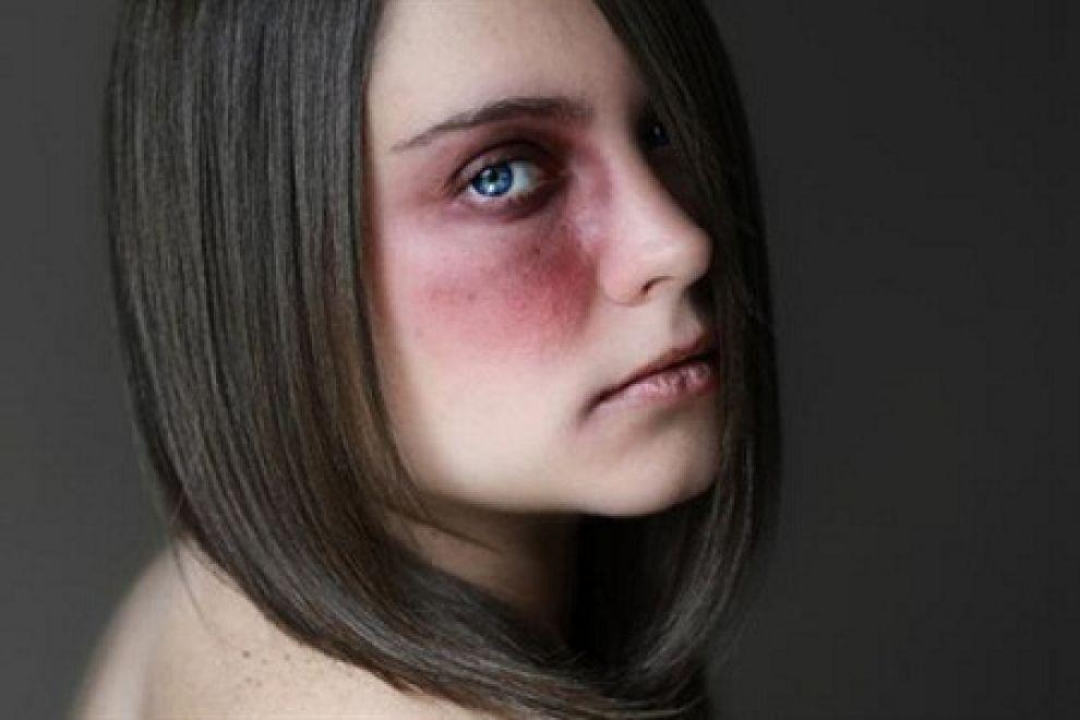 Violenza sulle donne, ad Ariccia l'ennesimo caso