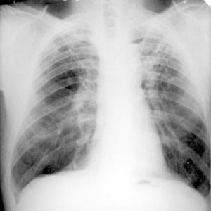 Quadro radiologico di TBC