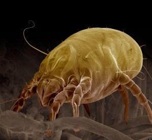 """""""Dermatophagoides pteronyssinus"""" osservato con il Microscopio Elettronico a Scansione"""