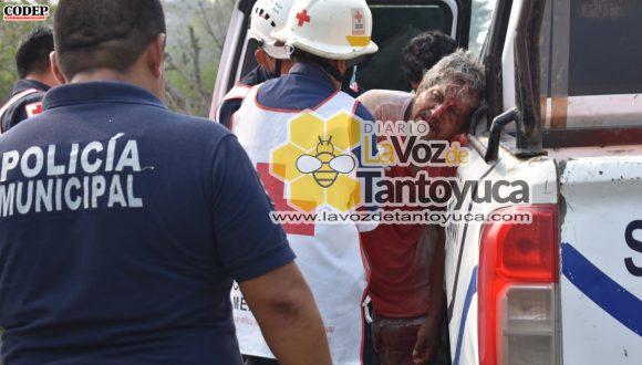 Albañil resulta lesionado tras recibir descarga eléctrica | LVDT