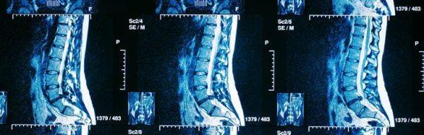 spinal chord injury lawyer
