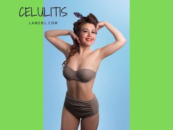 La verdad de la celulitis y cómo combatirla