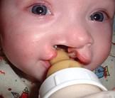 Million Topamax Birth Defect Award Stands
