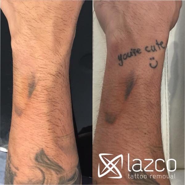 Brisbane Laser Tattoo Removal Clinic | Lazco Tattoo Removal
