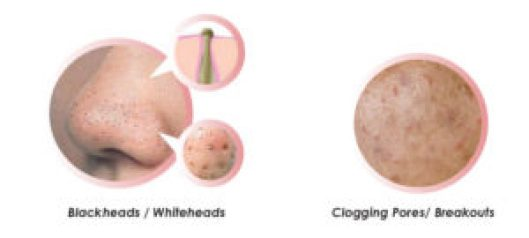 Difference Between Blackhead and Pimple