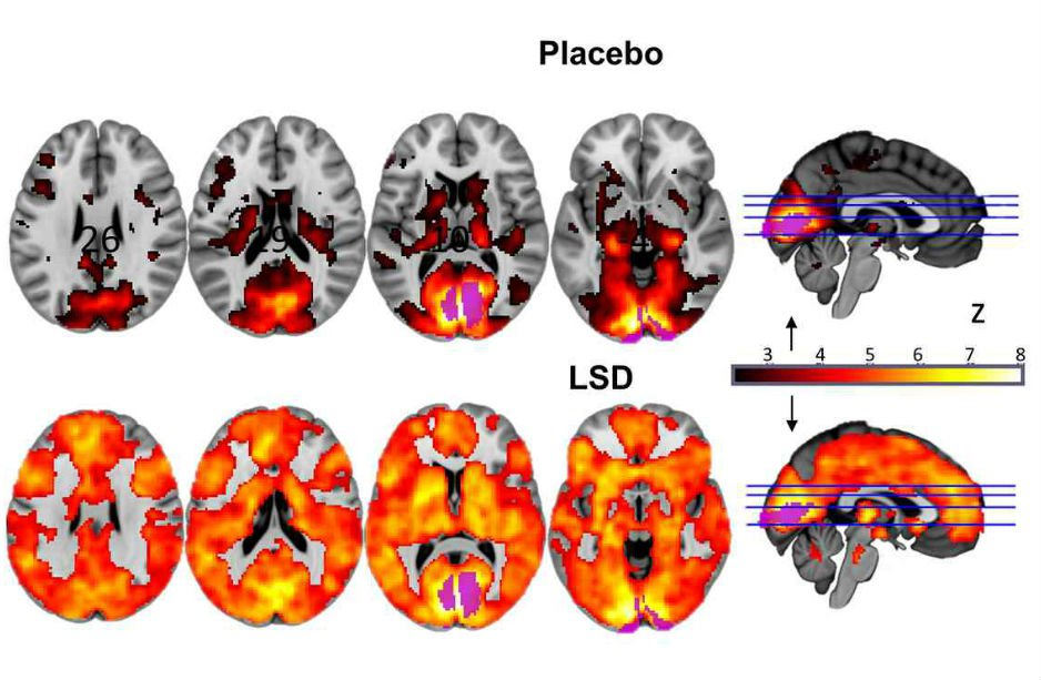 brain on lsd scan