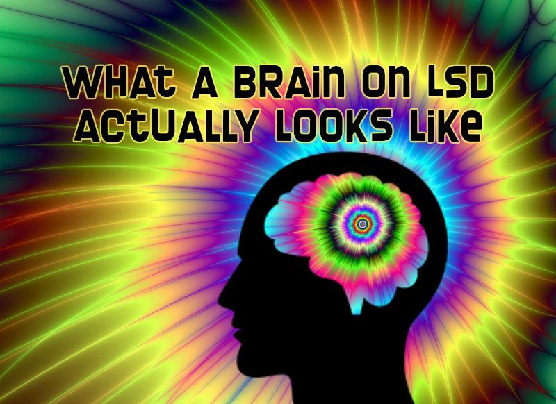 brain on lsd