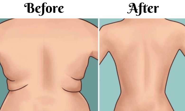 Get-Rid-Of-Back-Fat