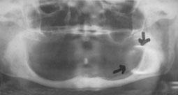 Fig 4 : artéfacts causés par une boucle d'oreille..
