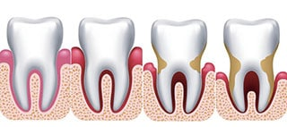 comprendre les étapes de la maladie parodontale