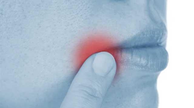 L'herpès labial : causes et traitements