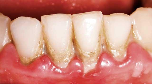 Qu'est-ce que la plaque dentaire et comment l'éliminer ?