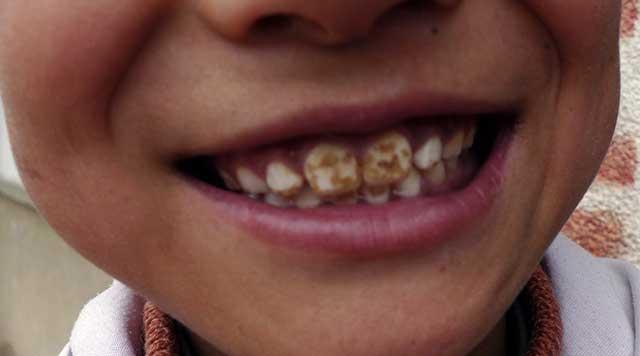La fluorose dentaire