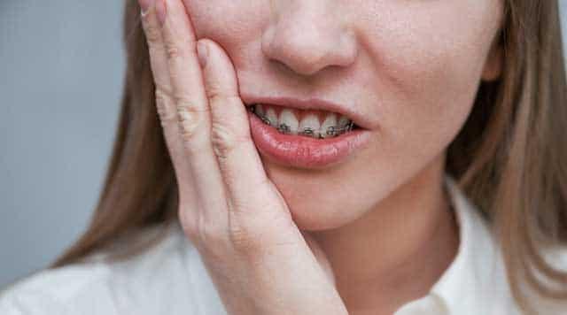Douleur liée aux appareils dentaires : Conseils pour s'en débarrasser