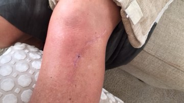 Wound Care Scar Relief