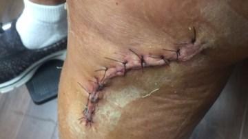 Wound Care Scar