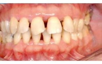 """Résultat de recherche d'images pour """"parodontite"""""""