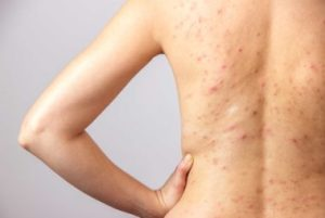 Acne on the whole body