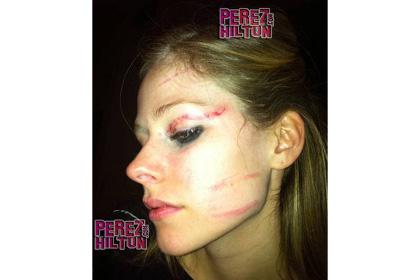 Avril Lavigne agression