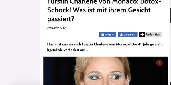 charlene-de-monaco-le-choc-le-botox-quest-il-arrive-a-son-visage
