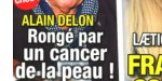 "Alain Delon ""isolé"" dans le Loiret - Cancer de la peau - Implacable mise au point (photo)"