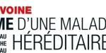 """Marc Lavoine, """"mariage"""", en douce - Une maladie héréditaire qui complique son quotidien"""