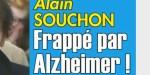 Alain Souchon, frappé par Alzheimer, il se bat courageusement