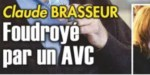 Claude Brasseur décédé -  Une grave pathologie cardiovasculaire