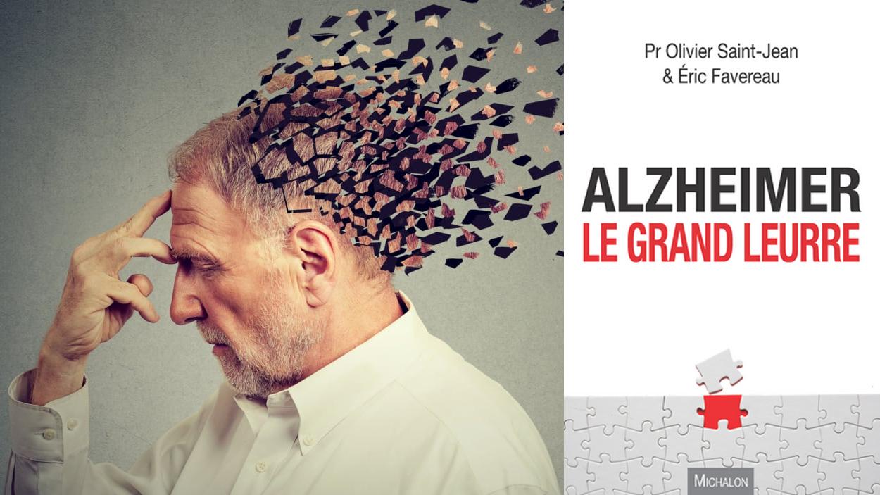 Maladie d'Alzheimer, encore une escroquerie ! – Le Libre Penseur