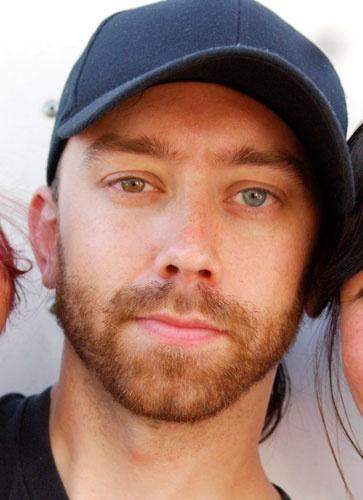 Tim Mcllrath olhos heterocromia