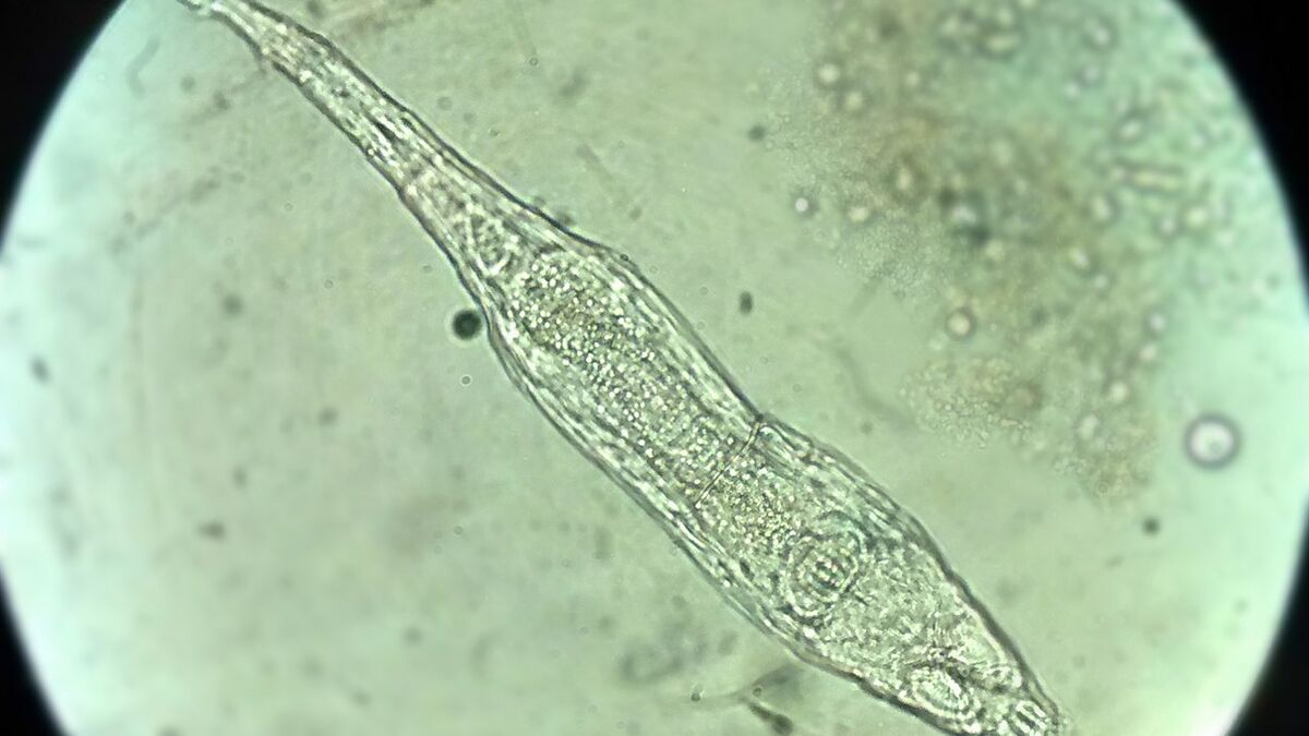 Un animal microscopique survit 24 000 ans dans le permafrost de la Sibérie