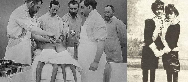 9 février 1902. Les deux soeurs siamoises Doodica et Radica sont séparées. L'une meurt, l'autre pas.