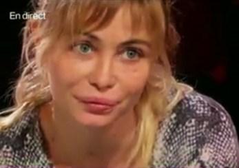 Emmanuelle-Beart-a-bien-utilise-la-chirurgie-esthetique-sur-ses-levres_exact1024x768_l