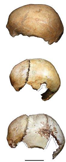Il cannibalismo preistorico, tra utilitarismo e ritualità