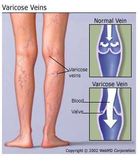 understanding_varicose_veins_basics