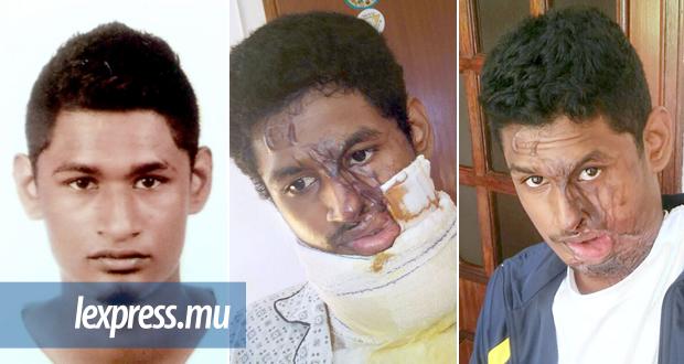 Venkatesh Camdoo avant son agression, durant son séjour à l'hôpital et aujourd'hui. Ces images, dures, montrent la gravité des conséquences d'une attaque à l'acide. (photos publiées avec l'autorisation de la victime et des parents)