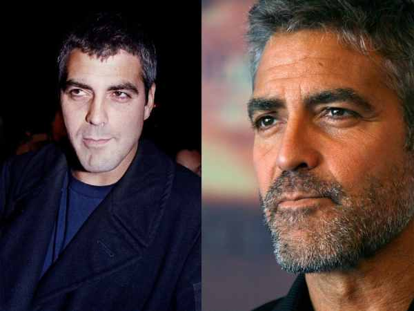 Rhinoplastie deGeorges Clooney