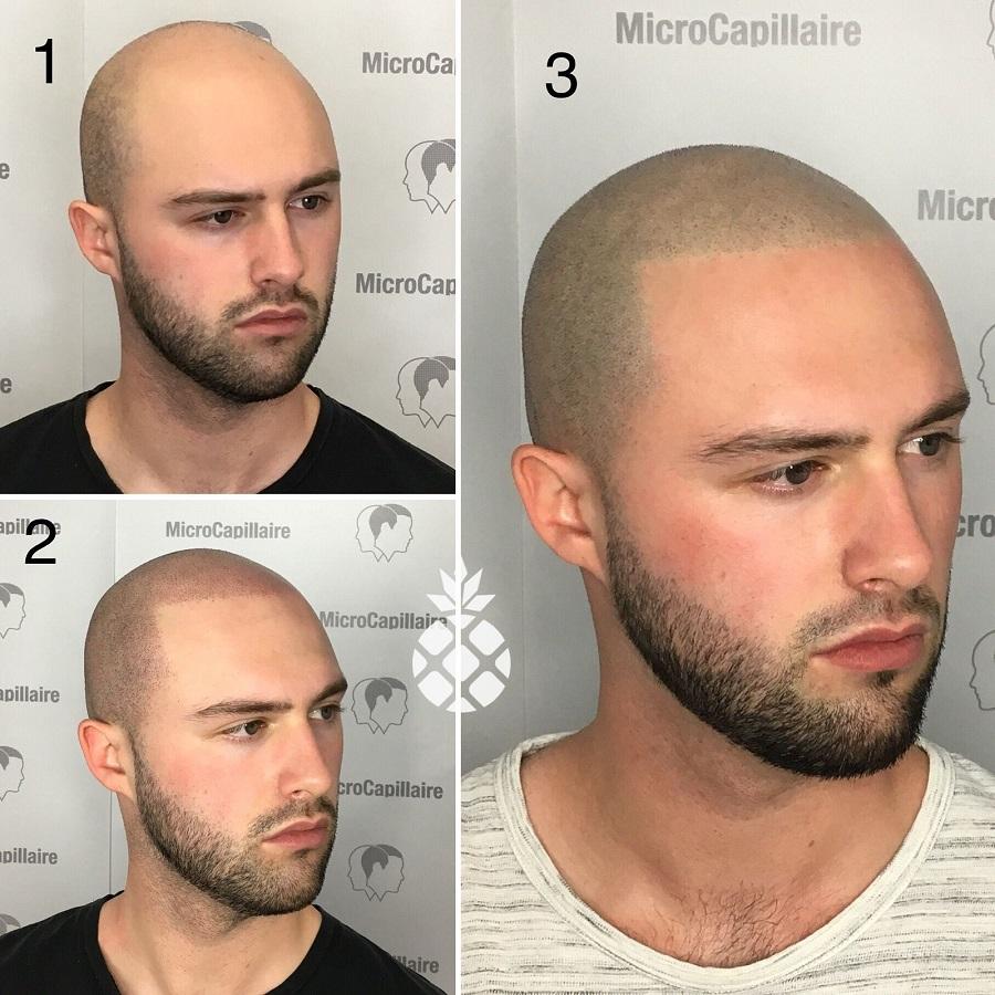 Résultats progressifs d'un tatouage du cuir chevelu homme