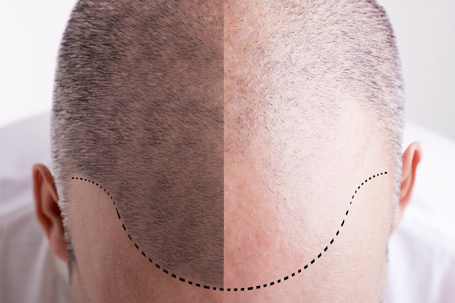 Tatouage du cuir chevelu : comment ça marche ?