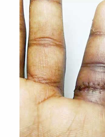 Shakib Al Hasan hand injury