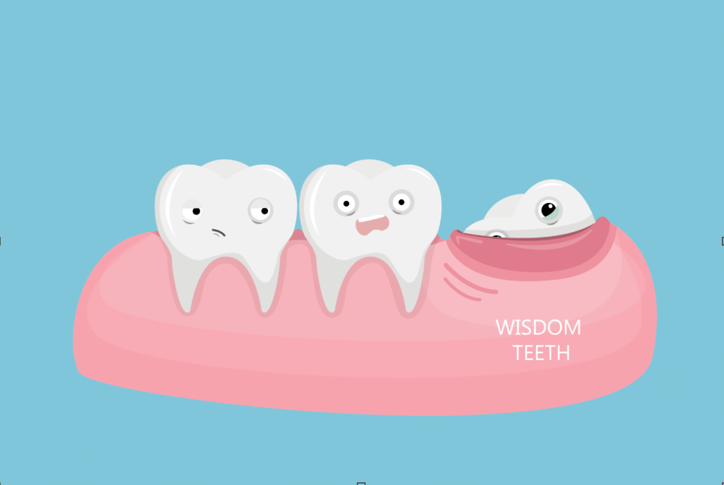 Tooth Extraction in Victorville, Wisdom Tooth Cartoon example