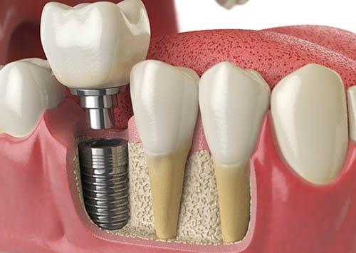 Do You Need A Bone Graft For A Dental Implant?