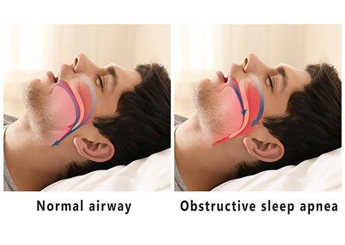 Sleep Apnea obstructive air way