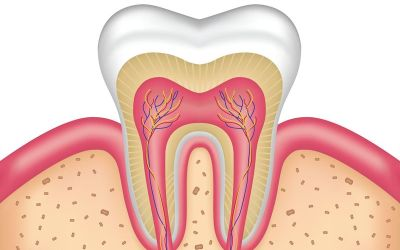 Benefits of Root Canal Treatment
