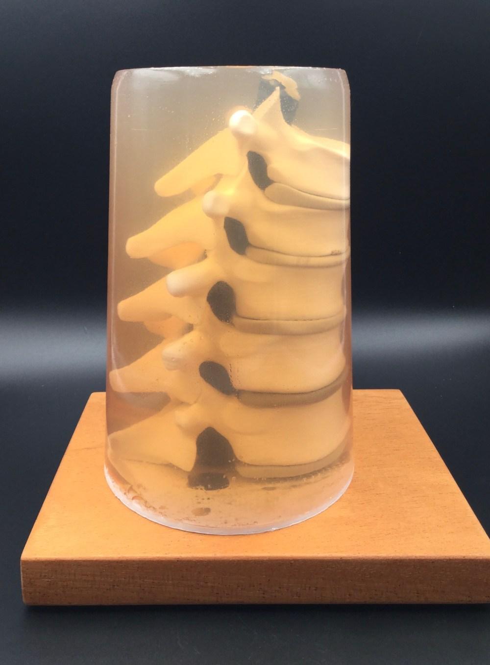 gelatin spine 2