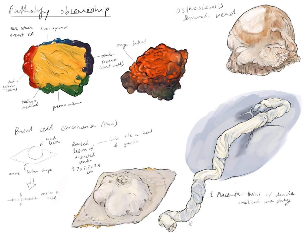 Pathology Observational Sketches