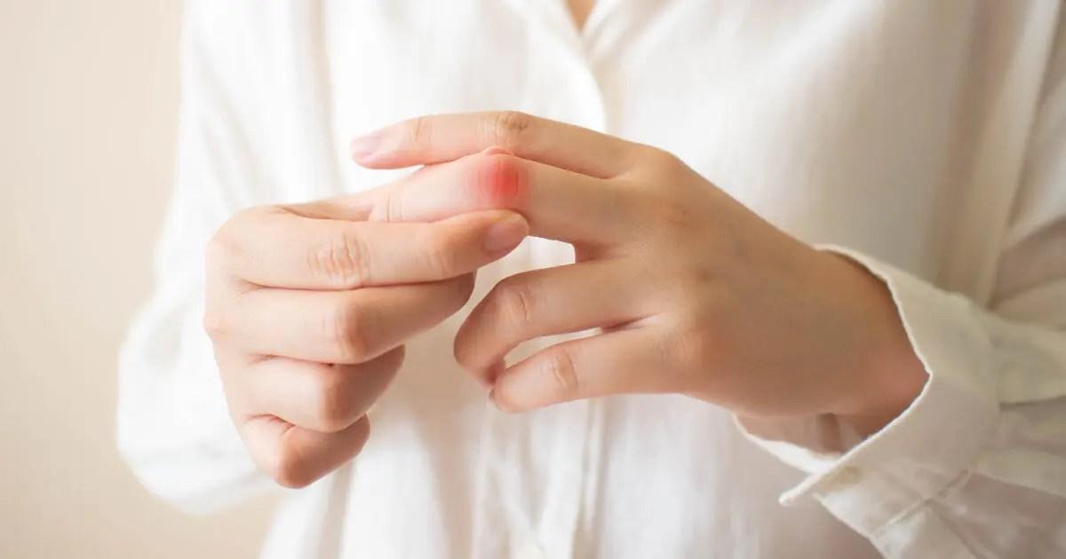 fingerschmerzen ursache behandlung